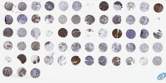 IHC staining of Gastric Cancer tumor microarray slide