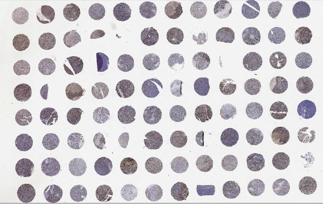 IHC staining of Melanoma tumor microarray slide