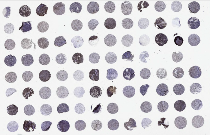 IHC staining of lung cancer TMA tumor
