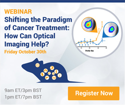 Shifting the Paradigm of Cancer Treatment: How Can Optical Imaging Help?