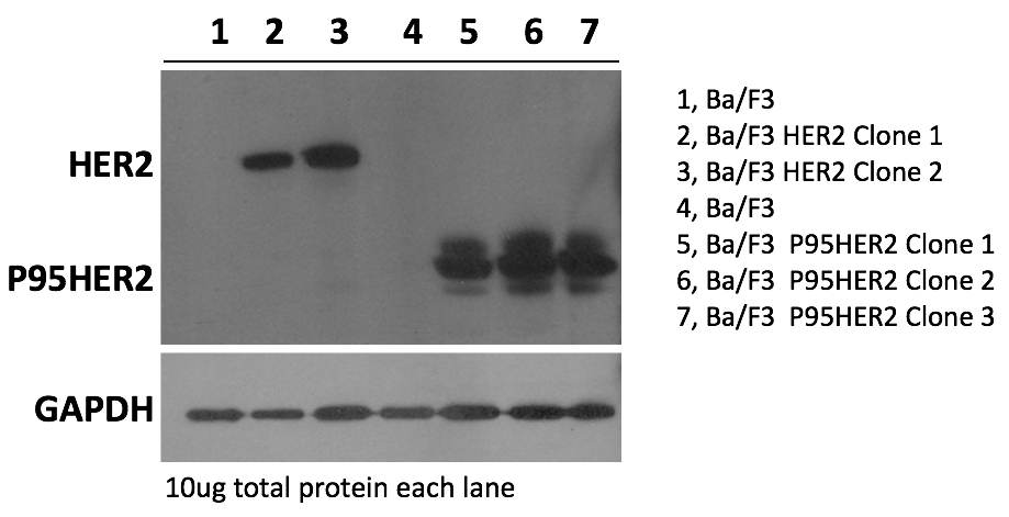 Characterization of HER2 and its mutants overexpressed in Ba/F3 stable clones using Western Blot.