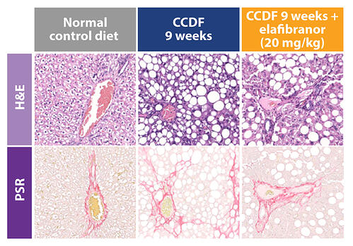 liver histopathology images for wistar rat ccdf liver fibrosis rodent model plus elafibranor treatment