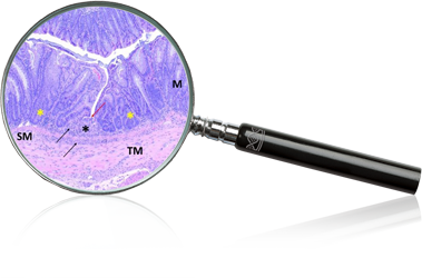 inflammaiton-magnifyglass.png