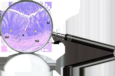 inflammaiton-magnifyglass