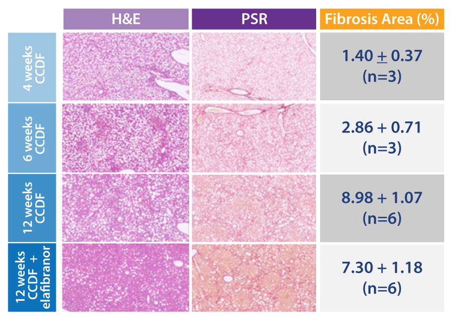 histology images for C57BL/6 ccdf liver fibrosis rodent model plus elafibranor treatment