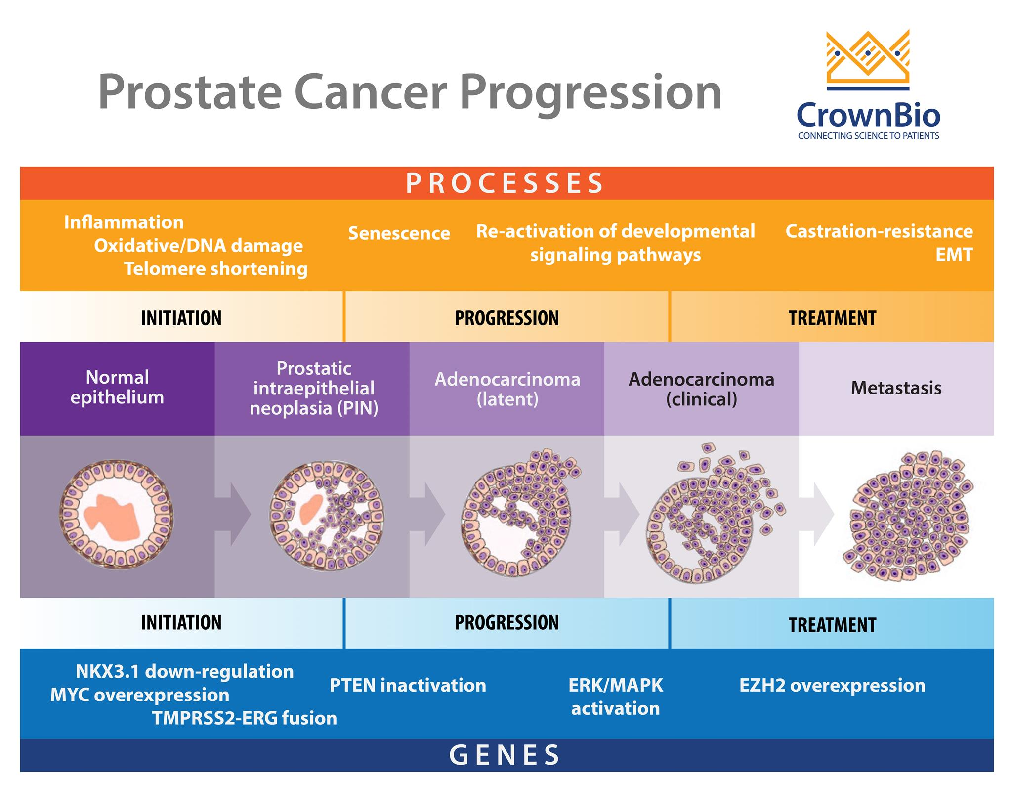 progression of prostate cancer from initiation to metastatic, castration resistant disease, including genetic alterations and cellular processes