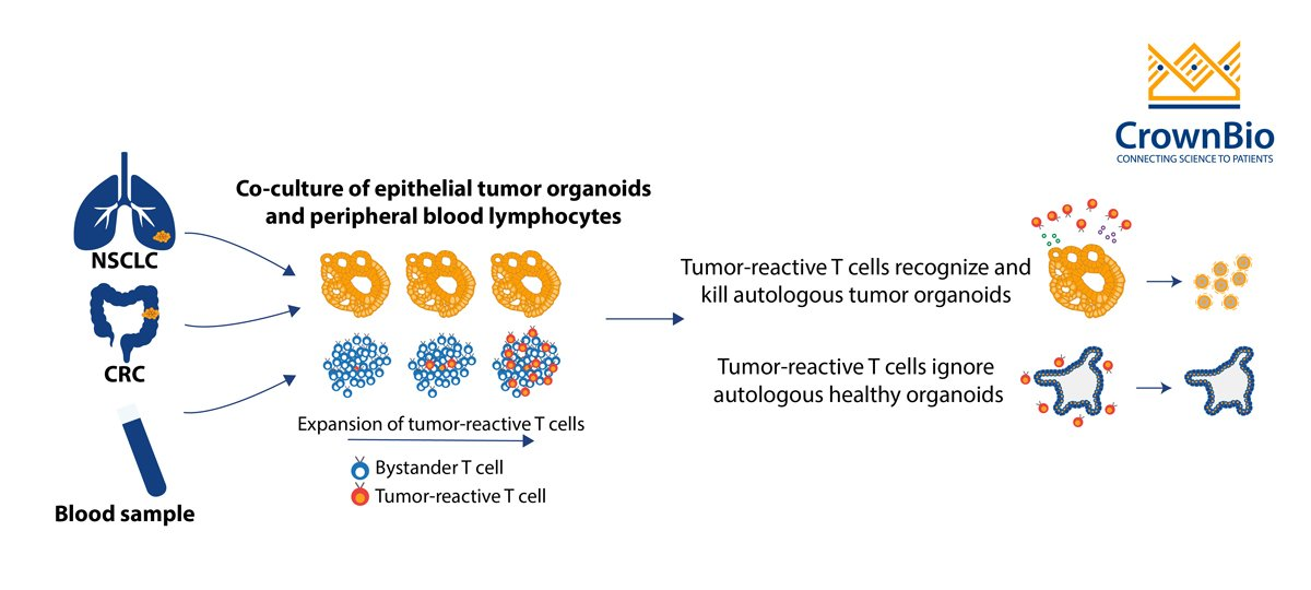 Dijkstra et al report on tumor organoid and autologous immune cell co culture