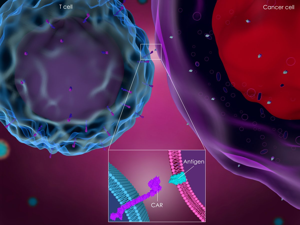 CAR-T Cell Therapy for Pancreatic Cancer